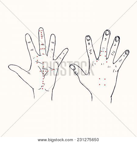 Acupuncture Scheme With Red Points, Hand Drawn Doodle, Sketch In Pop Art Style, Black And White Medi
