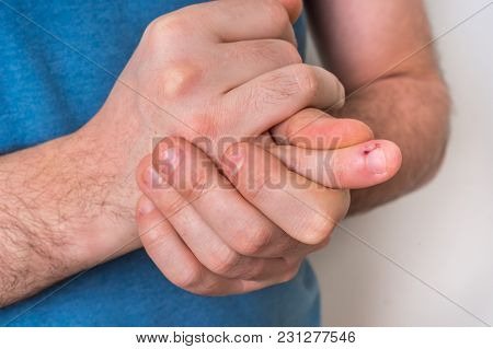 Man With Finger Pain Is Holding His Aching Finger - Body Pain Concept