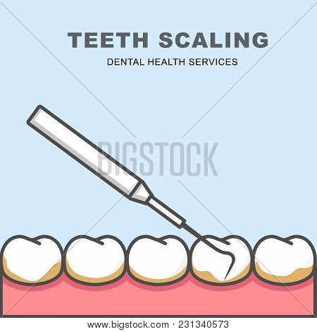 Tooth Scaling Icon - Row Of Tooth, Cleaning With Periodontal Probe
