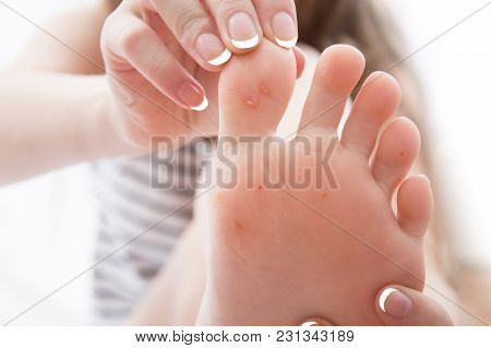 Female Foot With Problem Areas On The Skin, Dry Callus.