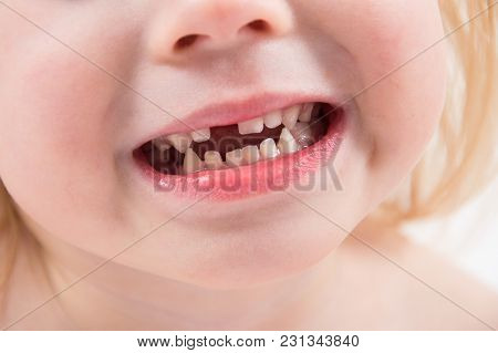 Toothless Smile Close Up, Loss Of The First Milk Teeth At An Early Age
