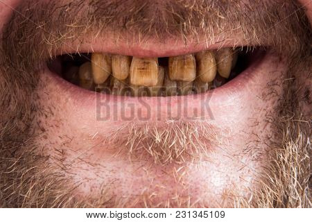 Smoker's Teeth, The Smoker's Close-up Smile, The Dentist's Dream