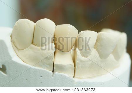 Gypsum Stomatologic Human Jaws. Ceramic-metal Crown On Plaster Model