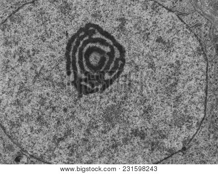 False Colour Transmission Electron Microscope (tem) Micrograph Showing A Nucleolus Of Atypical Aspec