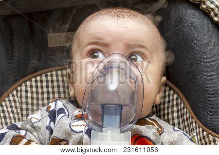 Mask Inhalator On The Child's Face. Newborn.