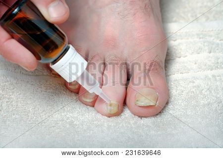 The Medicine For Nail Fungus Is Applied To The Toe. Close-up View.
