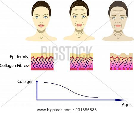 Vector Illustration With Aging Process, Female Faces From Young To Old, Scheme For Cosmetological Pi