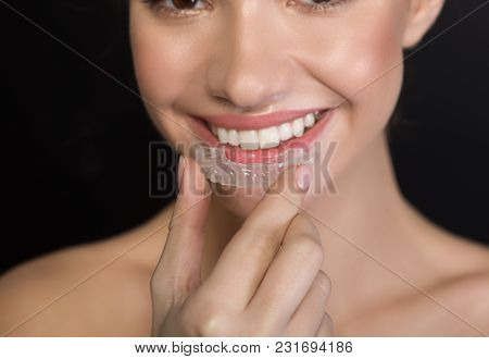 Dental Health Concept. Close Up Of Female Mouth Is Wearing Clear Aligner On Teeth For Orthodontic Co