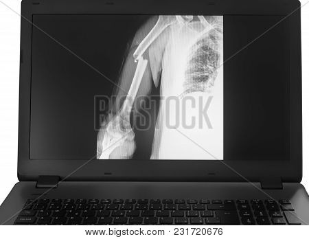 X-ray Image Of Broken Arm On Monitor Of Pc On The White Background.