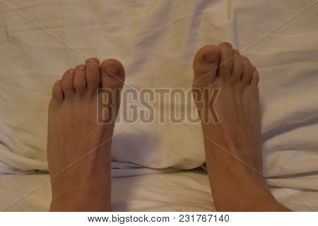 The Foot Plural Feet Is An Anatomical Structure Found In Many Vertebrates. It Is The Terminal Portio