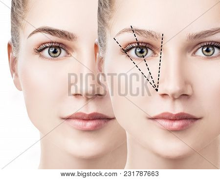 Eyebrows Correction. Female Face Before And After Eyebrows Shape Correction.