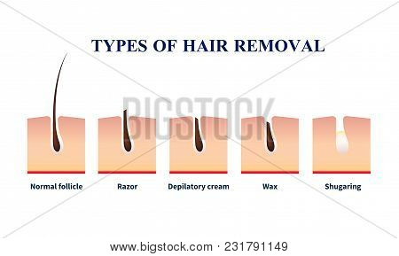 Normal Follicle And Types Of Hair Removal With Help Of Razor, Depilation Cream, Wax, Sugaring Vector