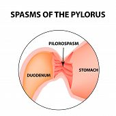 spasms of the pylorus. Pylorospasm. Spastic and atonic. Pyloric sphincter of the stomach. Infographics. Vector image on isolated background. poster