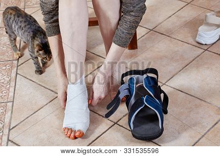 Woman Leg In Bandage And Orthopedic Boot After Trauma Or Surgery, With Iodine Spots. The Result Of U