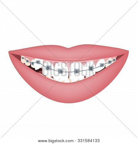 Woman Smile With Braces On Crooked Teeth. Vector Illustration, Flat Style. Dentist And Orthodontist