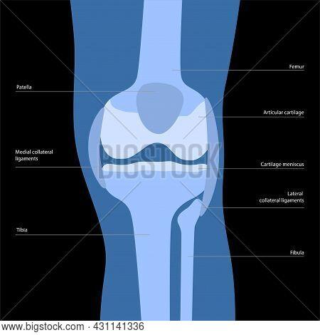 Knee Bone Anatomy Concept. Descriptions Of The Human Leg Bones And Joints. Meniscus, Ligaments, Tend