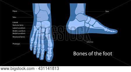 Foot Bone Anatomy Concept. Descriptions Of The Human Feet Bones And Joints. Talus, Ligaments, Calcan