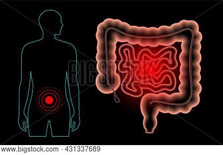 Inflammation And Pain In The Human Intestine. Inflammatory Bowel Disease, Ulcerative Colitis, Gastro