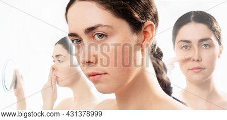 Aesthetic Cosmetology. Three Faces Of Young Caucasian Woman Comparing Results Before And After Plast