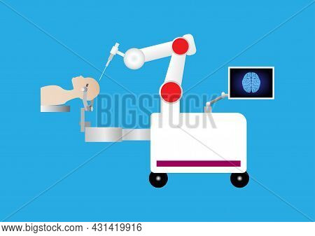 Robotic Assisted For Brain Surgery. Minimally Invasive In Neurosurgery. Robot With Arm And Computer