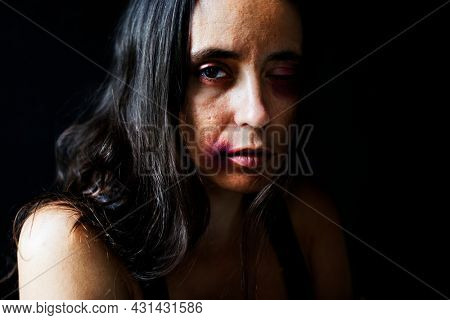 View of an abused woman