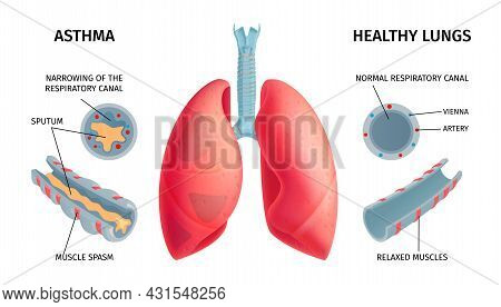 Human Lung Anatomy Respiratory Asthma Disease Symptoms Medical Educative Infochart Poster With Swoll