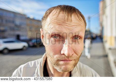 Portrait Of White Man On City Street At Daytime.