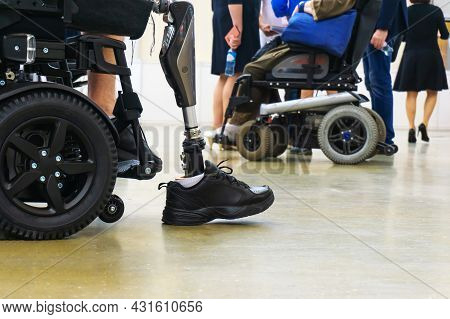 The Disabled Person Received A New Bionic Prosthesis And Is Trying To Take The First Steps And Get O