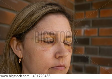 Double Eyelid Surgery, Eyes Surgery Recover Period, Immediately After Plastic Surgery. Eyes After Ey