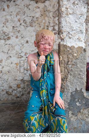 Zanzibar, Tanzania, January 22, 2021: African Albino Boy Sits On The Steps Of His Hut