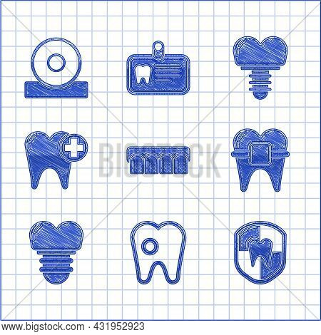 Set Dentures Model, Tooth With Caries, Dental Protection, Teeth Braces, Implant, And Otolaryngologic