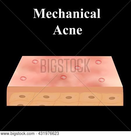 Cyst Acne. Acne On The Skin Of A Cyst. Dermatological And Cosmetic Diseases On The Skin Of The Face.