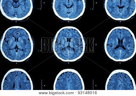 Ct Scan Of Brain Show Normal Brain ( Neurological Background )