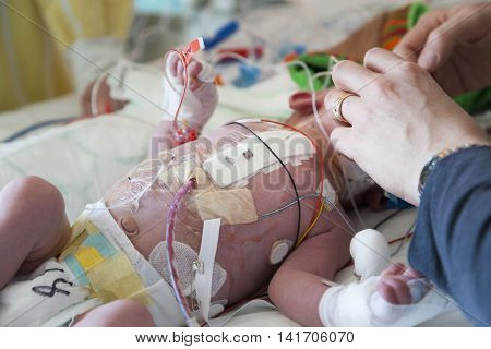 Child intensive care after heart surgery, caring hands.
