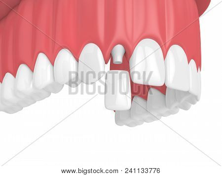 3D Render Of Upper Jaw With Teeth And Dental Lateral Incisor Crown
