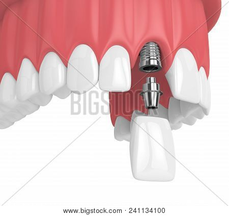 3D Render Of Upper Jaw With Teeth And Dental Incisor Implant