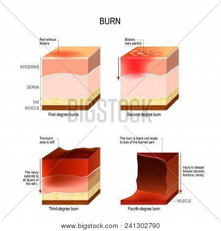 Skin Burn. Four Degrees Of Burns. Type Of Injury To Skin. Step Of Burn