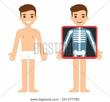 Cartoon Male Character Getting X-ray Checkup. Transparent Screen Showing Chest Bones. Radiography Ex