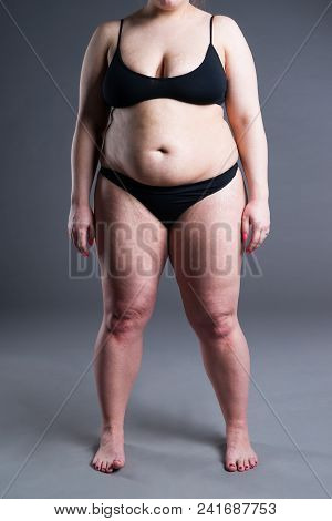 Overweight Woman With Fat Belly, Obesity Female Body On Gray Background