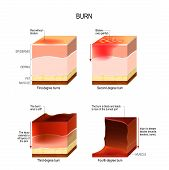 skin burn. four degrees of burns. type of injury to skin. step of burn poster