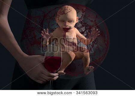 Alcohol Baby In Baby Bump. Unborn Baby In Baby Bump Drinks Wine Passively. Unborn In The Womb Absorb