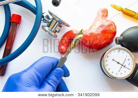 Concept Photo Of Stomach Or Gastric Surgery. Doctor With Scalpel In His Hand Makes An Incision In Fi