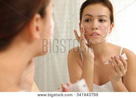 Teen Girl With Acne Problem Applying Cream Near Mirror In Bathroom
