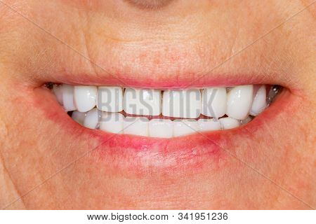 Dental Restoration Of Rotten Roots Of Teeth With Ceramic Crowns. Cast Posts Dentistry