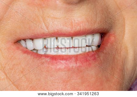 Plaque Of The Patient, Stone. Dentistry Treatment Of Dental Plaque, Professional Oral Hygiene. The C
