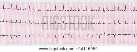 Ecg With Supraventricular Premature Beats And Short Paroxysms Of Atrial Fibrillation