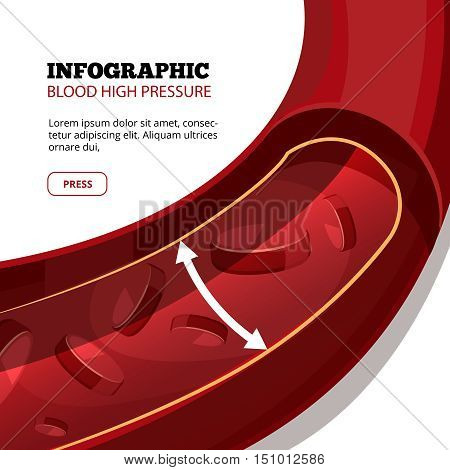 Blood high pressure vector medical infographic. Cardiovascular and bloodstream illustration