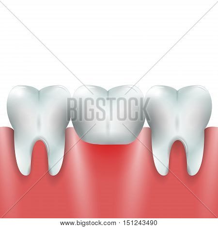 Teeth Family with Dental Bridge Crown in Healthy Gum.Dental Bridge Crown Prosthetic Dentistry Vector Illustration.Medical Conception Tutorial for Tooth Clinic.Dental Crown and Bridge for Dental Clinic