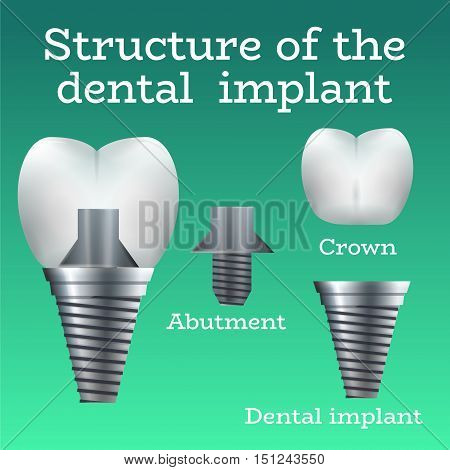 Dental Implant Structure Logo Surgery Dentistry Vector Illustration. Medical Conception for Tooth Clinic.Tooth Implant Clean Enamel on Green Blur Pattern.Implant Crown and Abudment for Dental Clinic