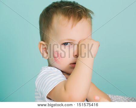 Cute Baby Boy Rubs Eye